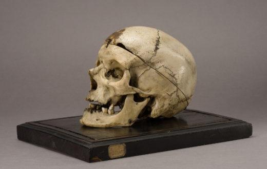 Razzismo: i meridionali sono più stupidi. Il cranio del brigante Giuseppe Villella