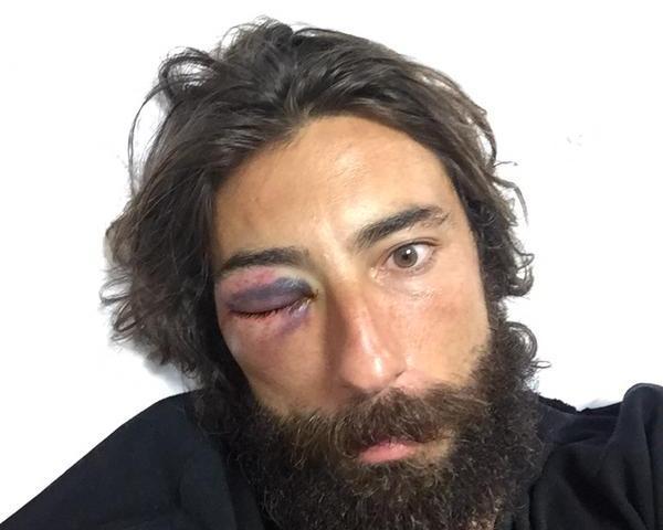 Vittorio Brumotti pestato