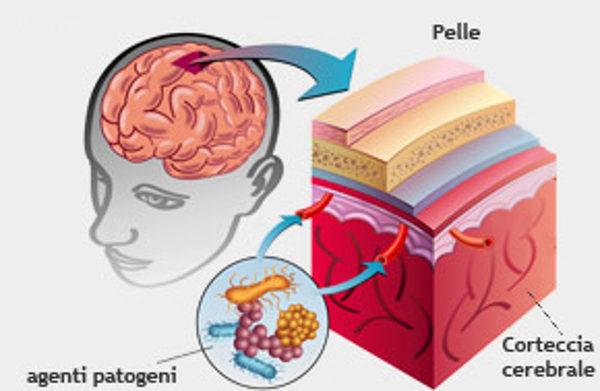 sintomi cura diagnosi prevenzione meningite