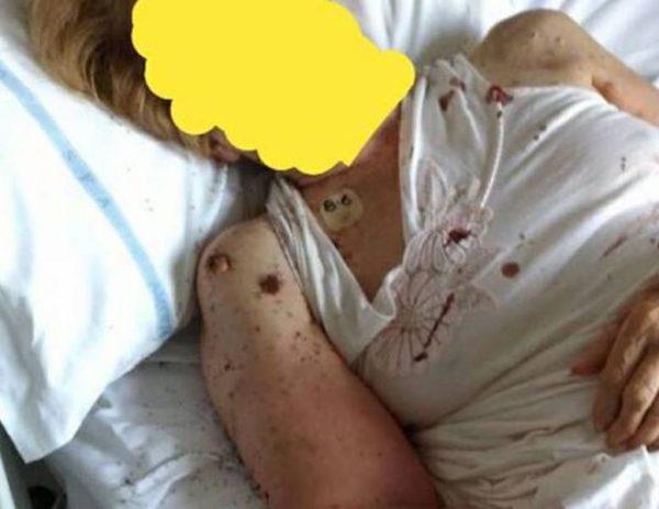 Napoli, donna ricoverata al San Paolo: il letto pieno di formiche