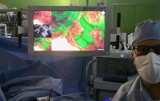 troisi tumori al fegato policlinico federico ii napoli