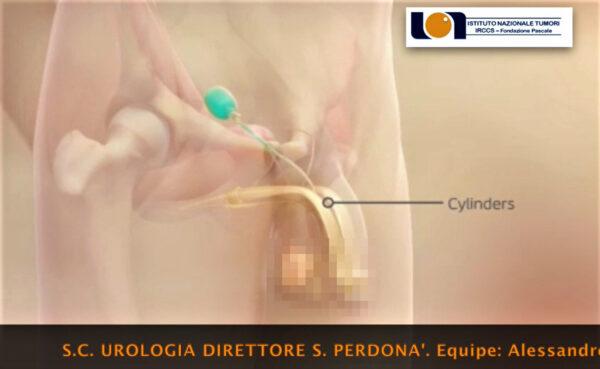 protesi pene pascale