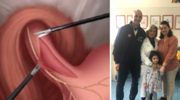 intervento esofago policlinico federico ii